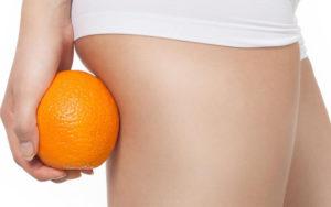 cellulite orange