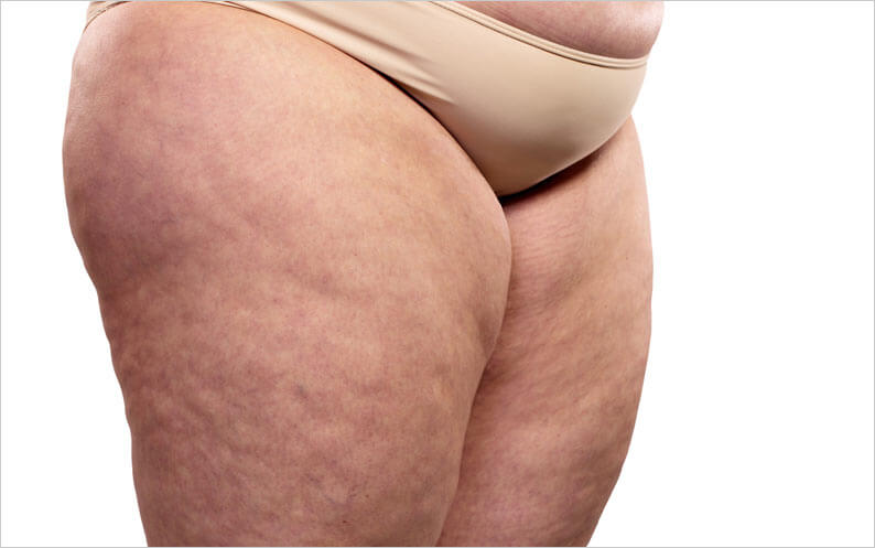 How to get rid of cellulite on your thighs naturally