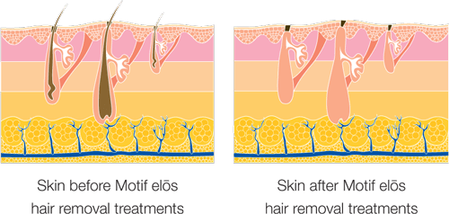 illustration of laser hair removal